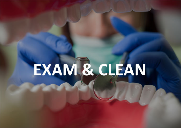 Exam-and-clean-dentist-frankston