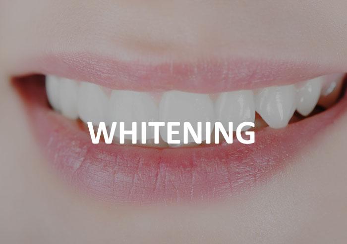 whitening-dentist-frankston